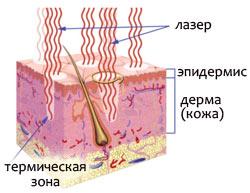 Лазерные и световые технологии в косметологии: система омоложения кожи Affirm