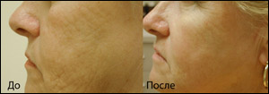 Лазерные и световые технологии в косметологической практике