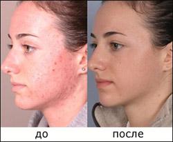 Гидромеханопилинг - новое слово в аппаратной косметологии
