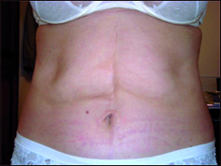 Что говорят о салоне, в котором всего за одну процедуру устраняют 1,5-4 см жировых тканей