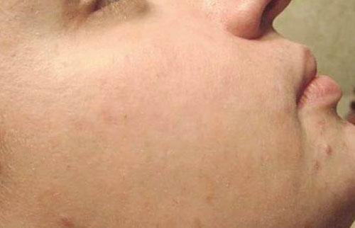 Атравматичная мануальная чистка кожи лица