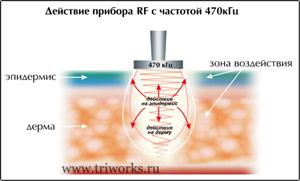 Аппарат REVITAL RF радиочастотный температурный контроль