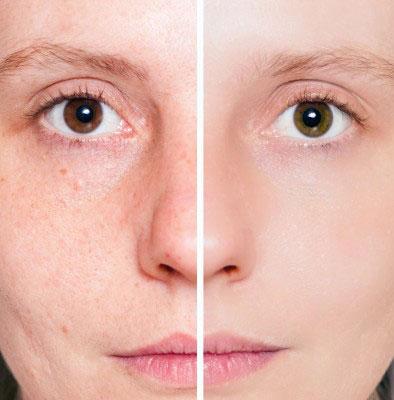 Гиперпигментация кожи и как с ней бороться
