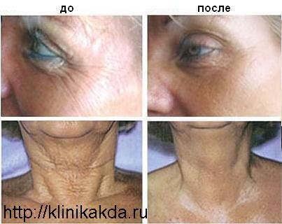 Современная косметология в Дагестане. Обучение косметологии