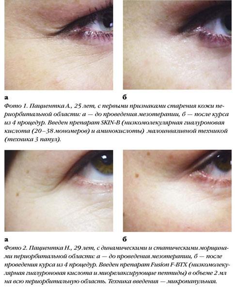 Мезотерапия периорбитальной области