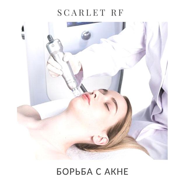 Scarlet RF