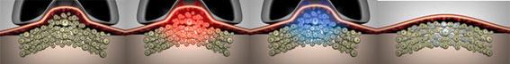 Новый шаг в развитии криолиполиза