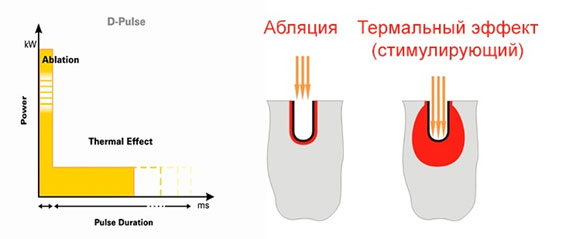 Повышение эффективности блефаропластики за счет малотравматичной лазерной диссекции