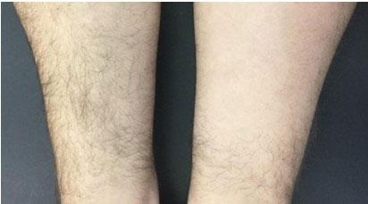 Клиническая оценка нового диодного лазера Diolaze XL, гибридного типа для удаления волос