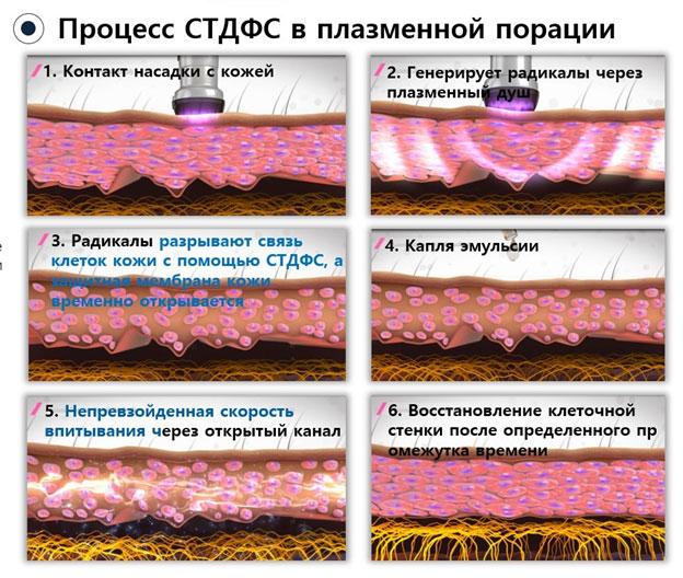 Плазменная порация для трансэпидермальной доставки препаратов