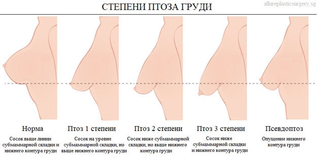 Радиочастотная подтяжка груди Breast Tite