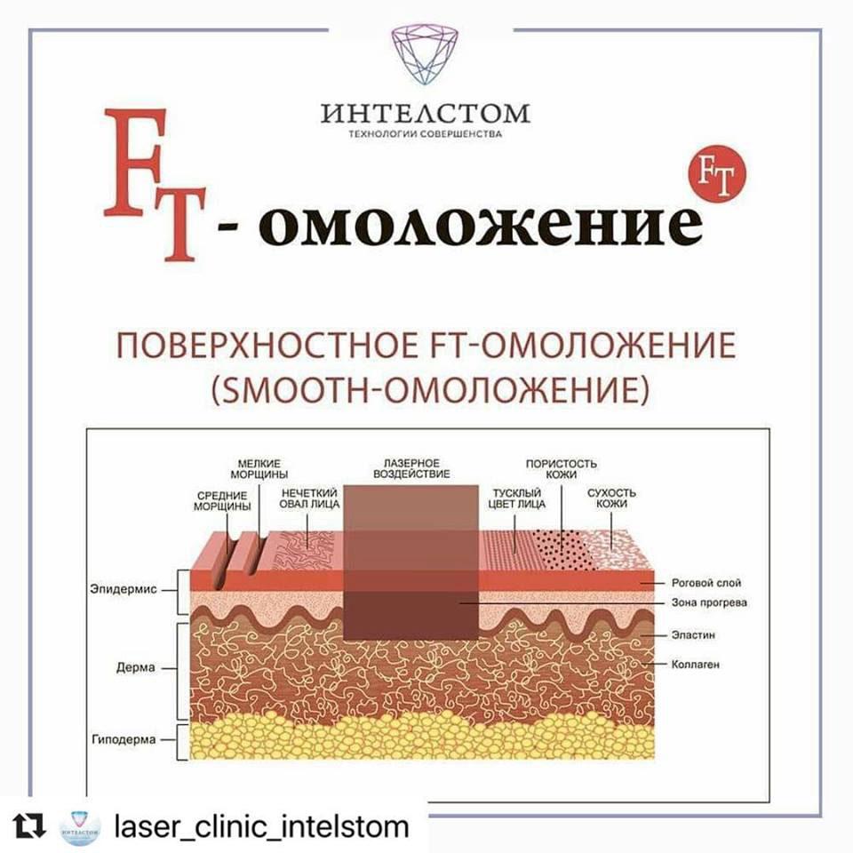 FT лазерное омоложение