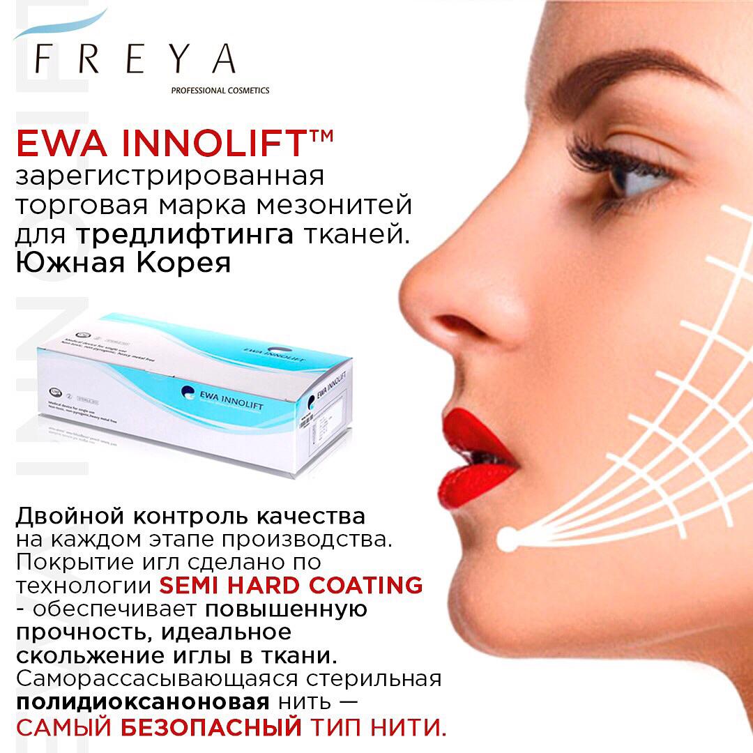 EWA Innolift - мезонити для тредлифтинга