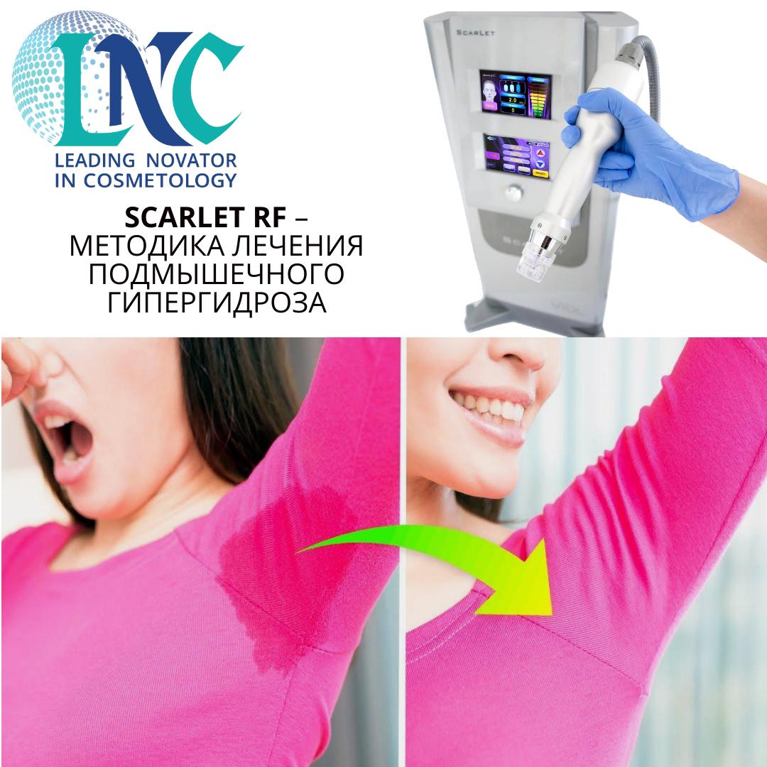 Лечение подмышечного гипергидроза при помощи микроигольчатого RF-аппарата Scarlet