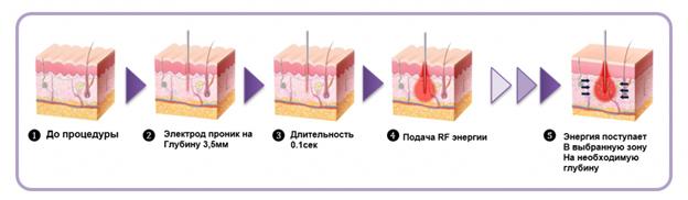 Применение фракционной микроигольчатой радиочастотной технологии