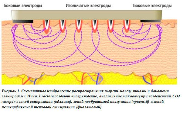 Fractora - игольчатый RF лифтинг