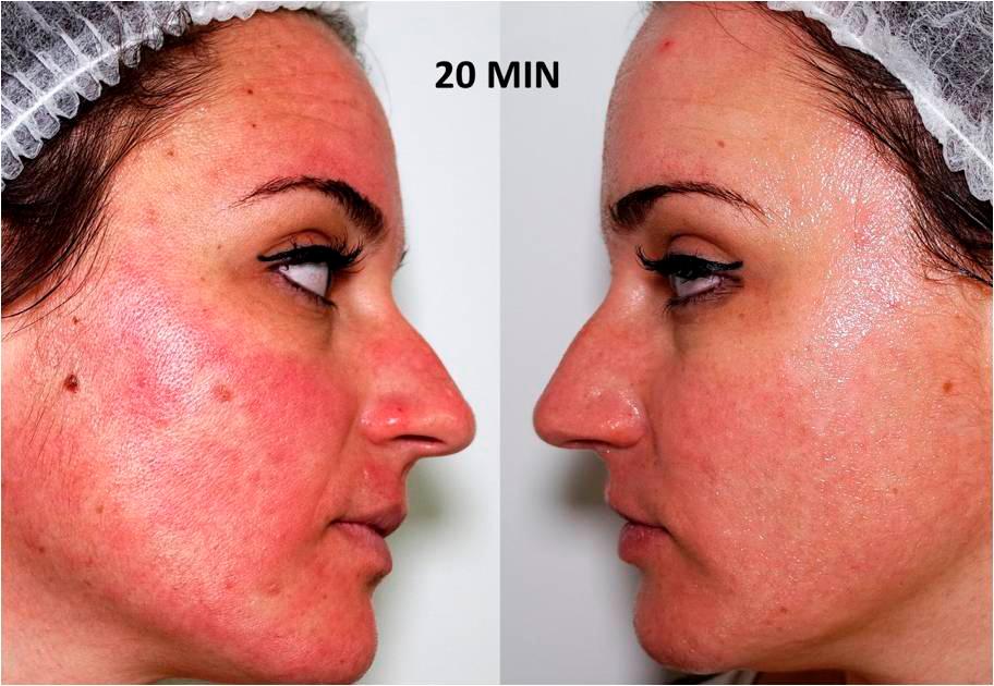 Умная косметология до и после лазера: полный уход из Франции