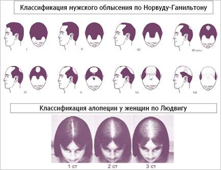 Опыт лечения андрогенетической алопеции с применением er:yag лазера от компании fotona. клинический случай