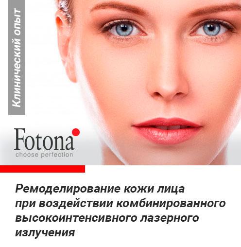 Лазерное ремоделирование кожи лица